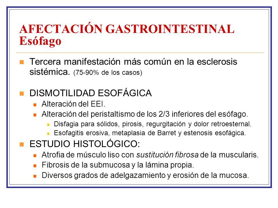 AFECTACIÓN GASTROINTESTINAL Esófago Tercera manifestación más común en la esclerosis sistémica.