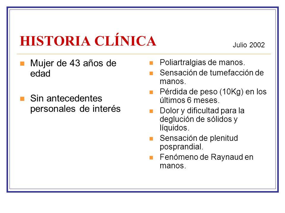 HISTORIA CLÍNICA Mujer de 43 años de edad Sin antecedentes personales de interés Poliartralgias de manos.