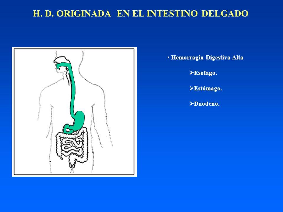 H. D. ORIGINADA EN EL INTESTINO DELGADO Hemorragia Digestiva Alta Esófago. Estómago. Duodeno.
