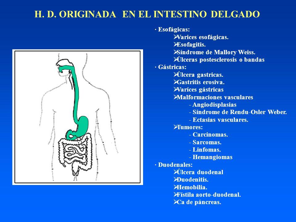 H. D. ORIGINADA EN EL INTESTINO DELGADO · Esofágicas: Varices esofágicas. Esofagitis. Síndrome de Mallory Weiss. Úlceras postesclerosis o bandas · Gás
