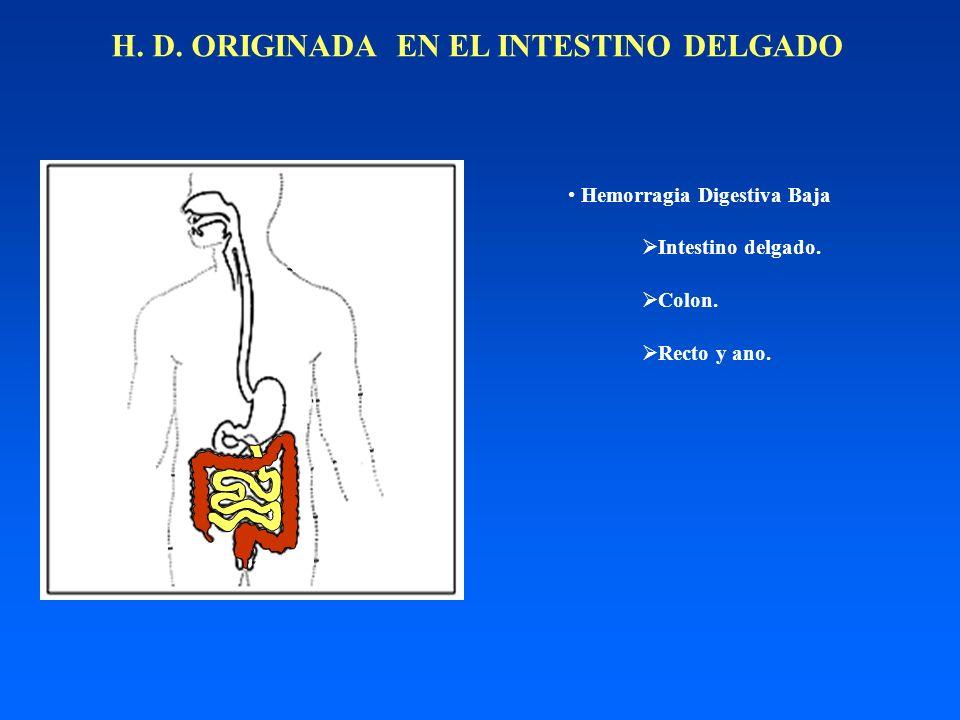 H. D. ORIGINADA EN EL INTESTINO DELGADO Hemorragia Digestiva Baja Intestino delgado. Colon. Recto y ano.