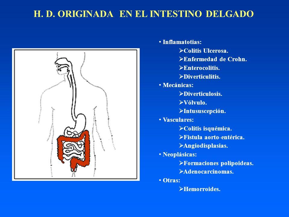 H. D. ORIGINADA EN EL INTESTINO DELGADO Inflamatotias: Colitis Ulcerosa. Hemorroides. Enfermedad de Crohn. Enterocolitis. Diverticulitis. Diverticulos