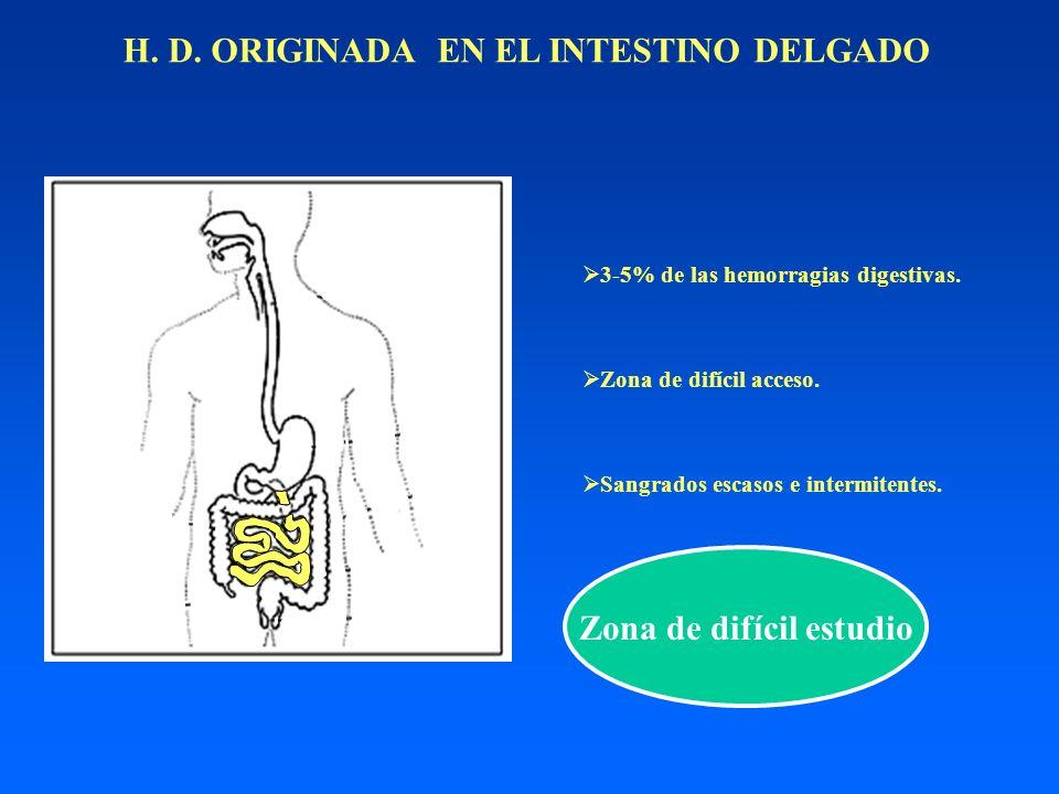 H. D. ORIGINADA EN EL INTESTINO DELGADO 3-5% de las hemorragias digestivas. Zona de difícil acceso. Sangrados escasos e intermitentes. Zona de difícil