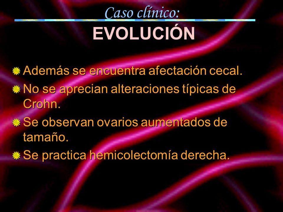 Caso clínico: EVOLUCIÓN Además se encuentra afectación cecal. No se aprecian alteraciones típicas de Crohn. Se observan ovarios aumentados de tamaño.