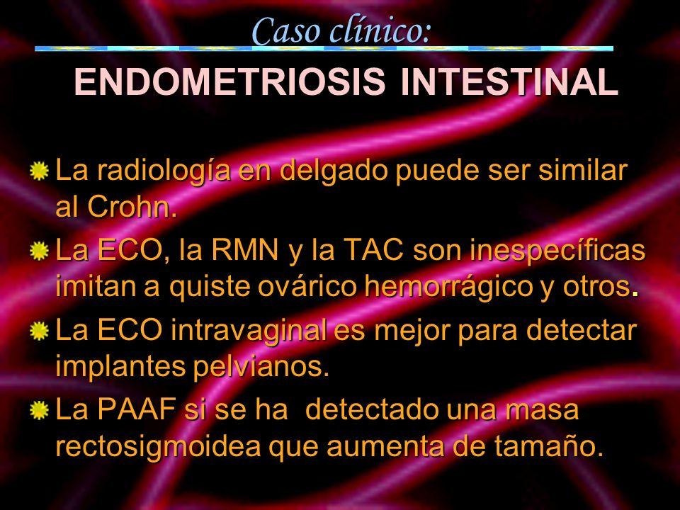 Caso clínico: ENDOMETRIOSIS INTESTINAL La radiología en delgado puede ser similar al Crohn. La ECO, la RMN y la TAC son inespecíficas imitan a quiste
