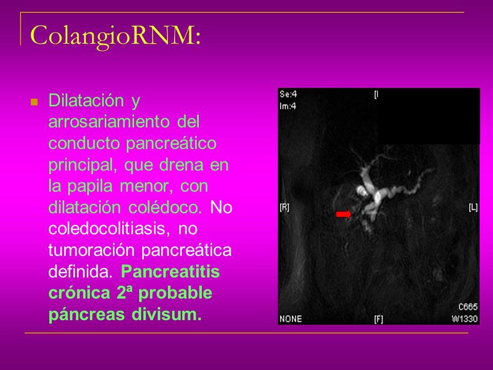 ColangioRNM: Dilatación y arrosariamiento del conducto pancreático principal, que drena en la papila menor, con dilatación colédoco. No coledocolitias