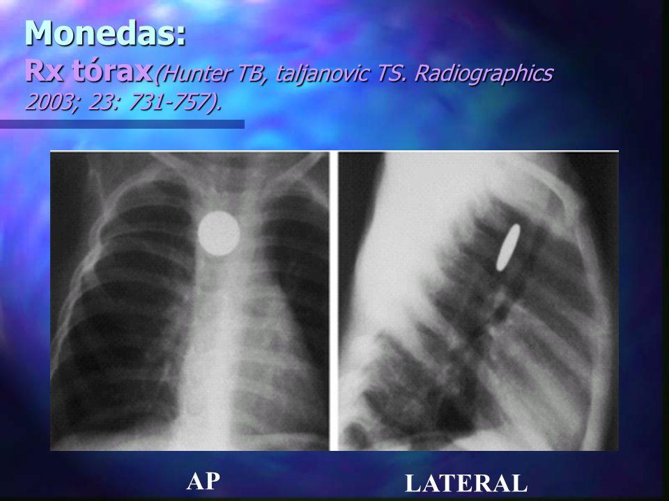 Cuerpos extraños puntiagudos o alargados: (Hunter TB, taljanovic TS.