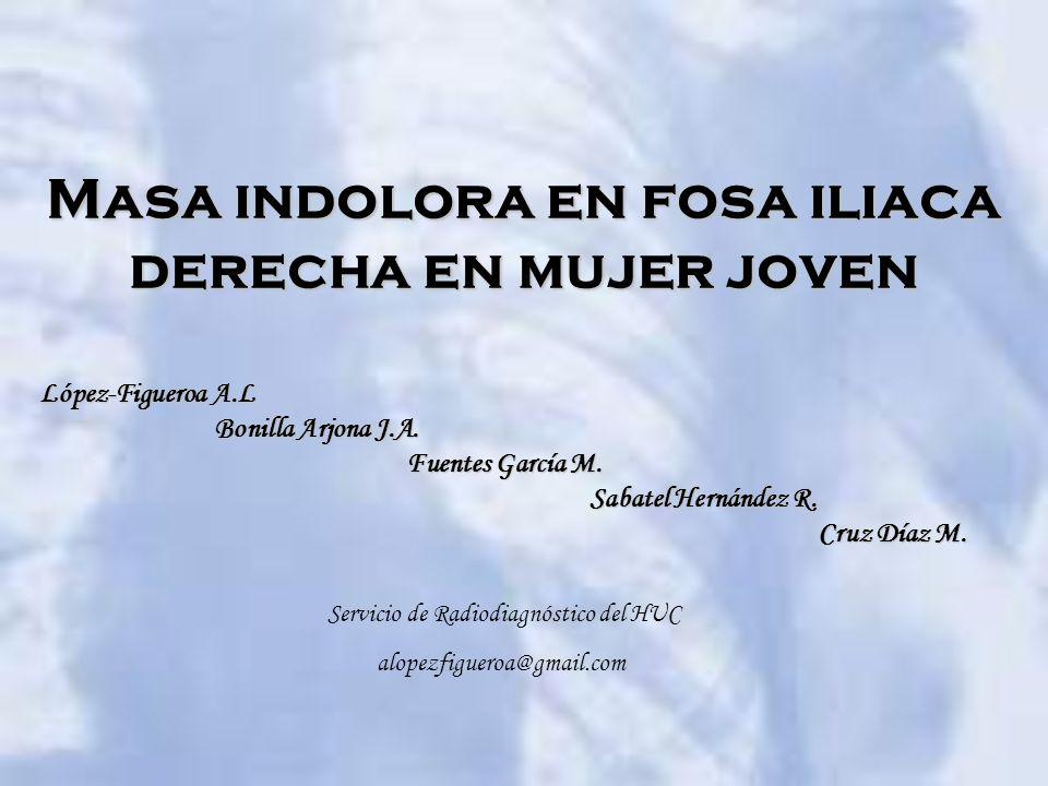 Masa indolora en fosa iliaca derecha en mujer joven López-Figueroa A.L Bonilla Arjona J.A. Fuentes García M. Sabatel Hernández R. Cruz Díaz M. Servici