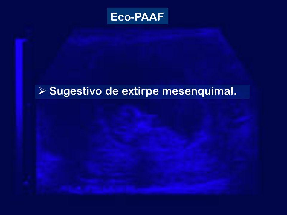 Sugestivo de extirpe mesenquimal. Eco-PAAF