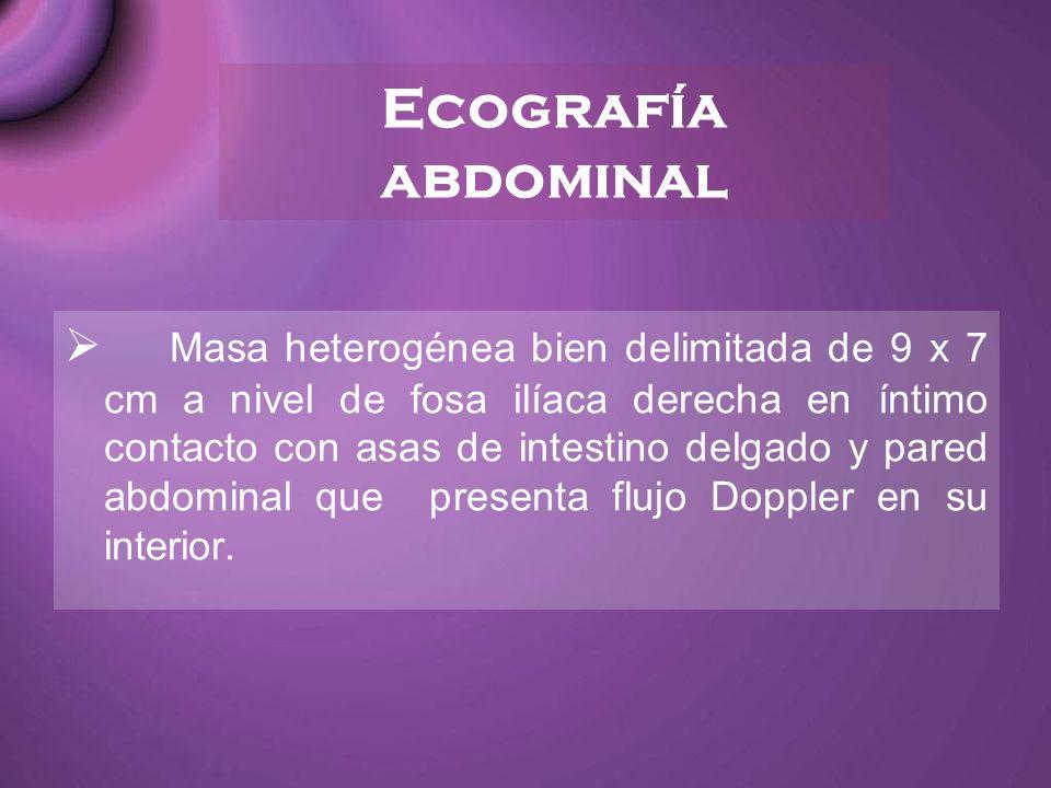Ecografía abdominal Masa heterogénea bien delimitada de 9 x 7 cm a nivel de fosa ilíaca derecha en íntimo contacto con asas de intestino delgado y par