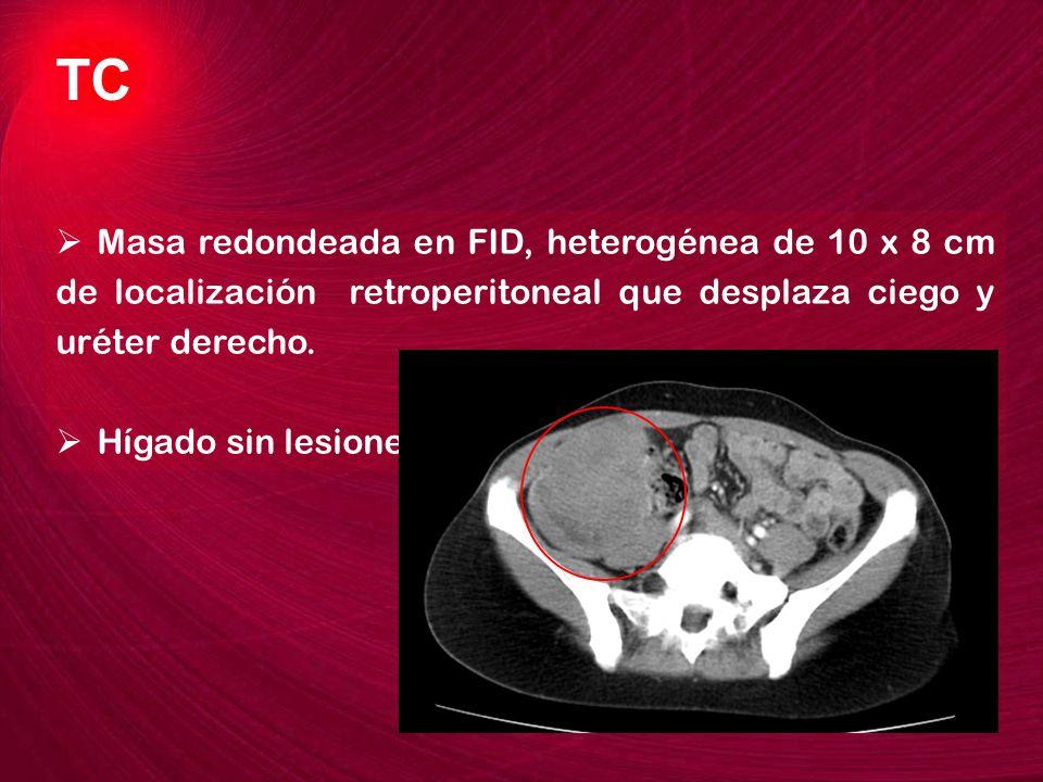 Masa redondeada en FID, heterogénea de 10 x 8 cm de localización retroperitoneal que desplaza ciego y uréter derecho. Hígado sin lesiones, resto de ab