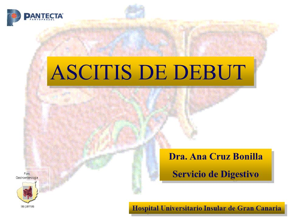 Dra. Ana Cruz Bonilla Servicio de Digestivo Dra. Ana Cruz Bonilla Servicio de Digestivo Hospital Universitario Insular de Gran Canaria ASCITIS DE DEBU