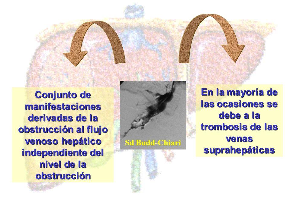 Conjunto de manifestaciones derivadas de la obstrucción al flujo venoso hepático independiente del nivel de la obstrucción En la mayoría de las ocasio