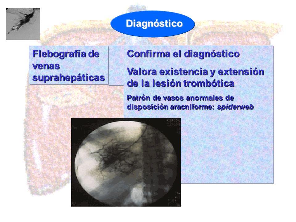 Confirma el diagnóstico Valora existencia y extensión de la lesión trombótica Patrón de vasos anormales de disposición aracniforme: spiderweb Flebogra
