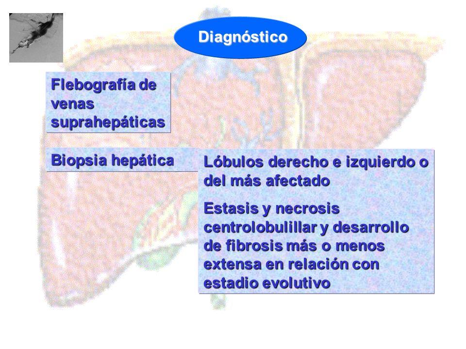 Biopsia hepática Lóbulos derecho e izquierdo o del más afectado Estasis y necrosis centrolobulillar y desarrollo de fibrosis más o menos extensa en re