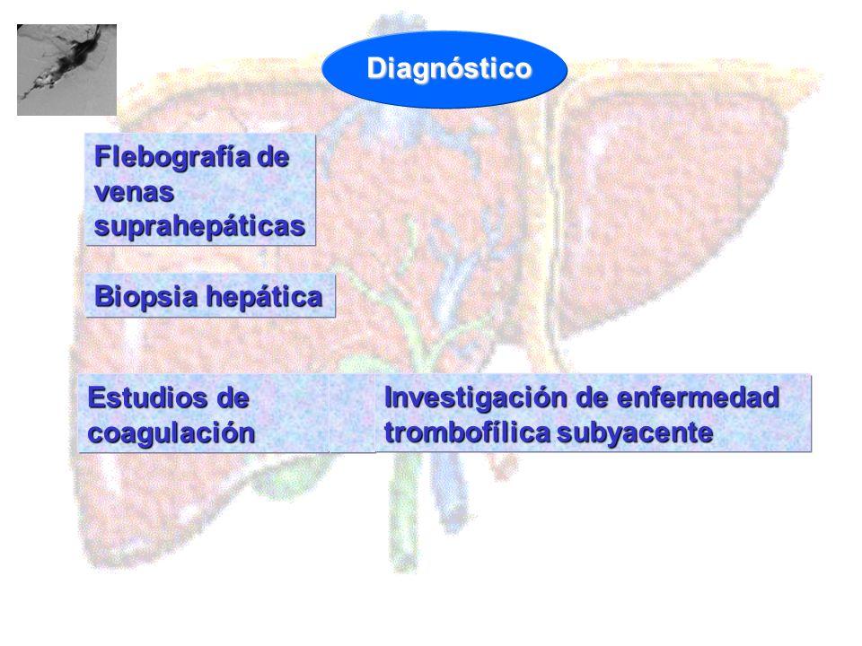 Biopsia hepática Estudios de coagulación Flebografía de venas suprahepáticas Investigación de enfermedad trombofílica subyacente Diagnóstico