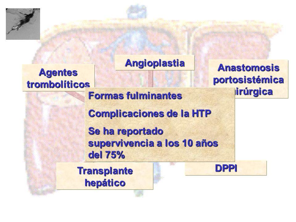 Agentes trombolíticos Transplante hepático Angioplastia Anastomosis portosistémica quirúrgica DPPI Tratamiento Formas fulminantes Complicaciones de la