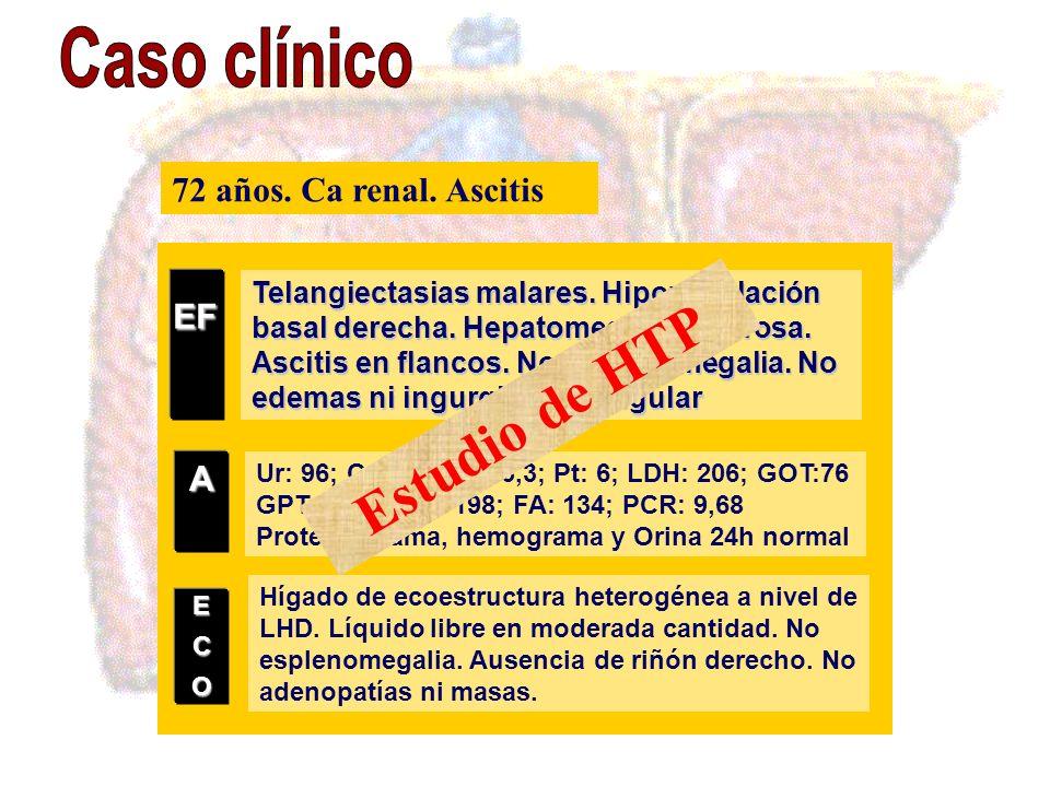 Telangiectasias malares. Hipoventilación basal derecha. Hepatomegalia dolorosa. Ascitis en flancos. No esplenomegalia. No edemas ni ingurgitación yugu