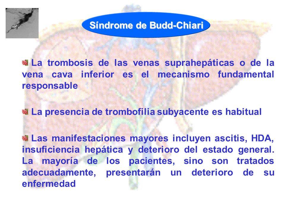 Síndrome de Budd-Chiari La trombosis de las venas suprahepáticas o de la vena cava inferior es el mecanismo fundamental responsable La presencia de tr