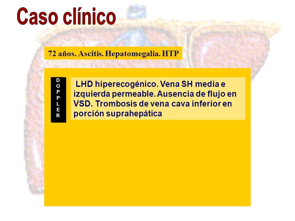 LHD hiperecogénico. Vena SH media e izquierda permeable. Ausencia de flujo en VSD. Trombosis de vena cava inferior en porción suprahepática DOPPLERDOP