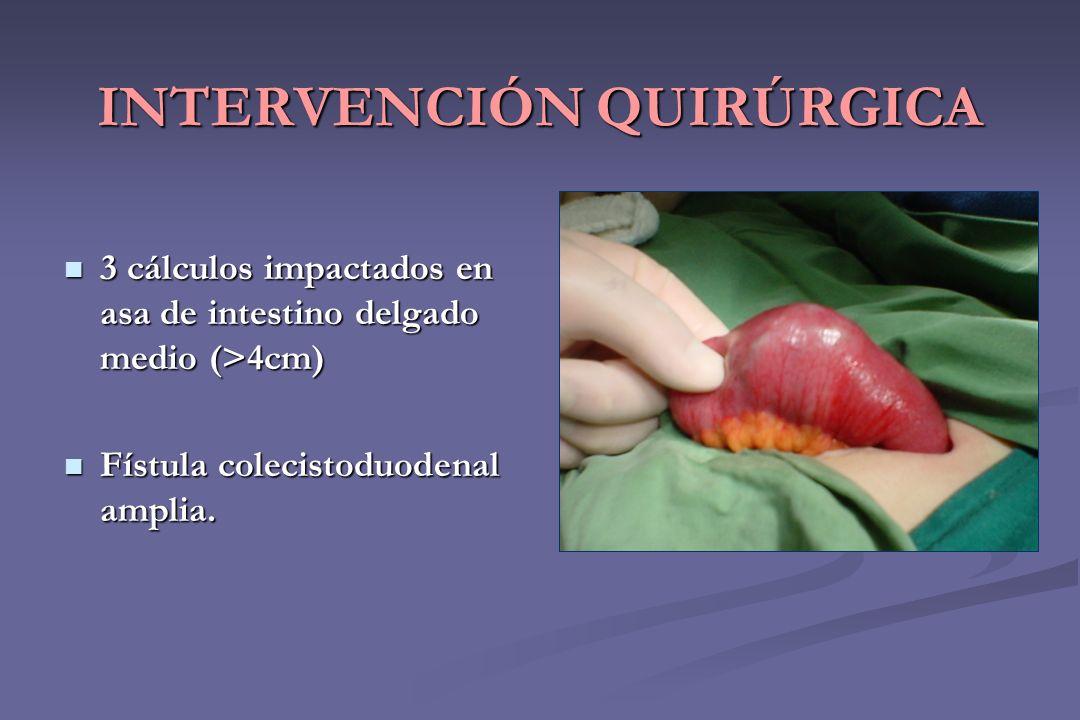 INTERVENCIÓN QUIRÚRGICA 3 cálculos impactados en asa de intestino delgado medio (>4cm) 3 cálculos impactados en asa de intestino delgado medio (>4cm)