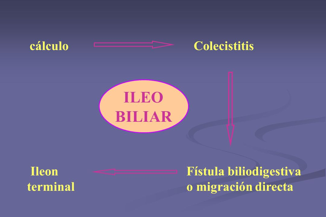 ILEO BILIAR Colecistitis Fístula biliodigestiva o migración directa cálculo Ileon terminal
