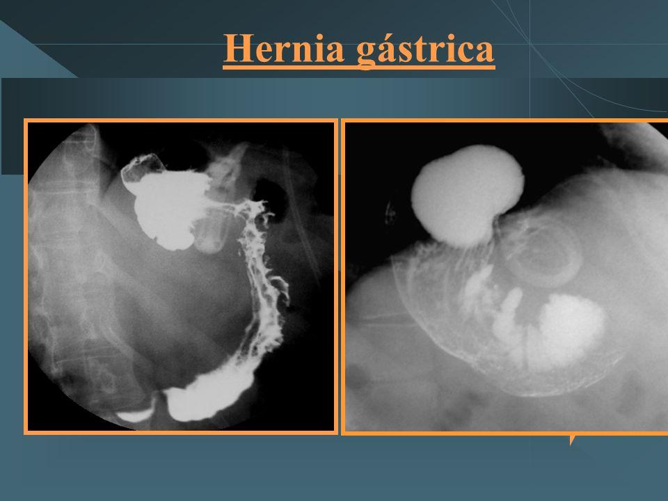 Hernia gástrica