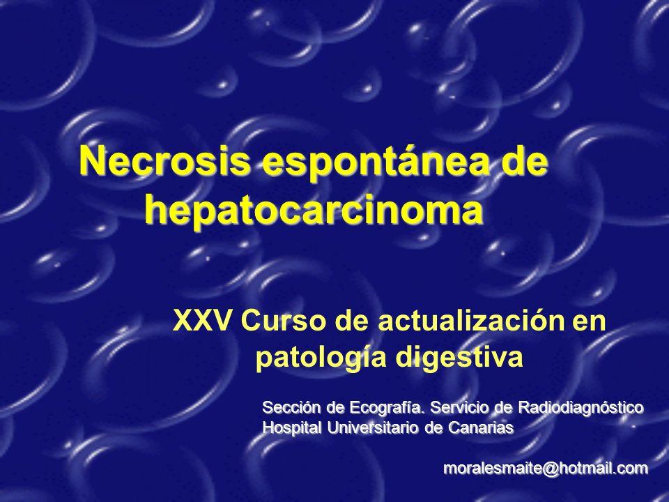 XXV Curso de actualización en patología digestiva Necrosis espontánea de hepatocarcinoma Sección de Ecografía. Servicio de Radiodiagnóstico Hospital U