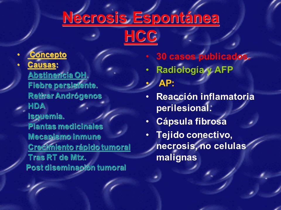 Necrosis Espontánea HCC Concepto Concepto Causas:Causas: Abstinencia OH. Fiebre persistente. Fiebre persistente. Retirar Andrógenos Retirar Andrógenos
