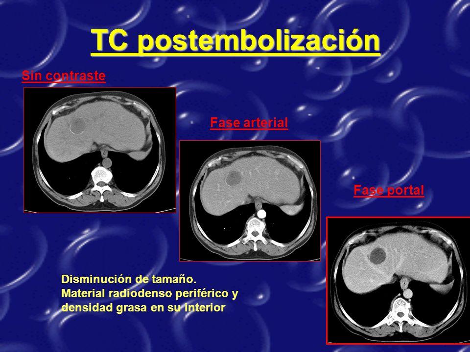 TC postembolización Sin contraste Fase arterial Fase portal Disminución de tamaño. Material radiodenso periférico y densidad grasa en su interior
