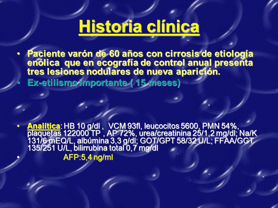 Arteriografía: Quimioembolización Masa hipovascular y periferia hipervascular Quimioembolización
