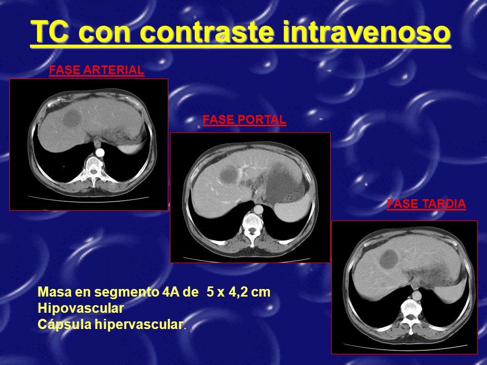 TC con contraste intravenoso FASE ARTERIAL FASE TARDIA FASE PORTAL Masa en segmento 4A de 5 x 4,2 cm Hipovascular Cápsula hipervascular.