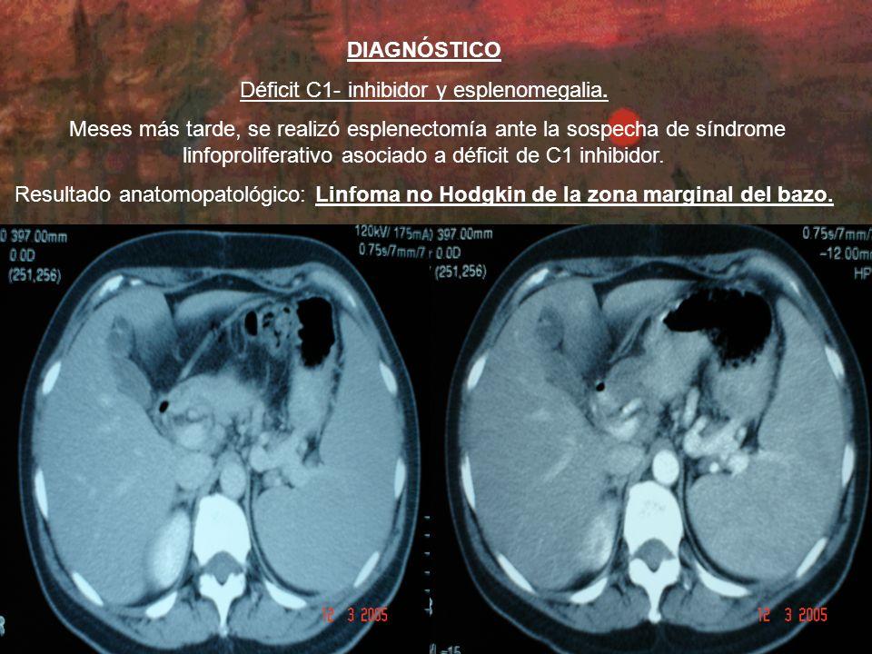 DIAGNÓSTICO Déficit C1- inhibidor y esplenomegalia.