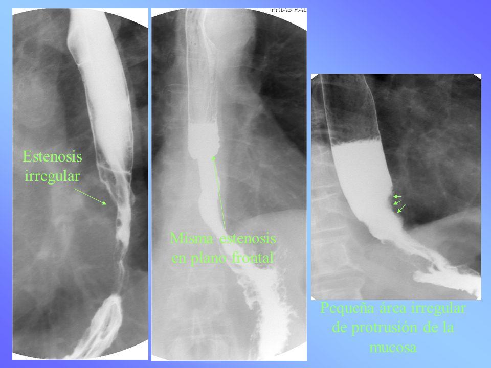 Estenosis irregular Misma estenosis en plano frontal Pequeña área irregular de protrusión de la mucosa