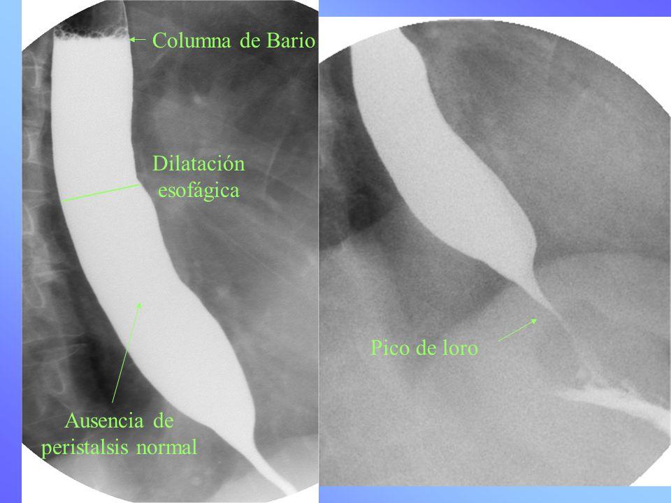 Columna de Bario Pico de loro Dilatación esofágica Ausencia de peristalsis normal