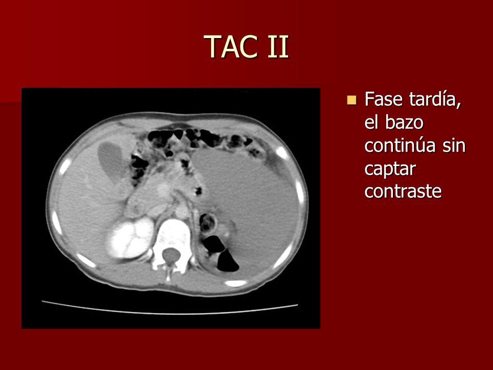 TAC II Fase tardía, el bazo continúa sin captar contraste Fase tardía, el bazo continúa sin captar contraste