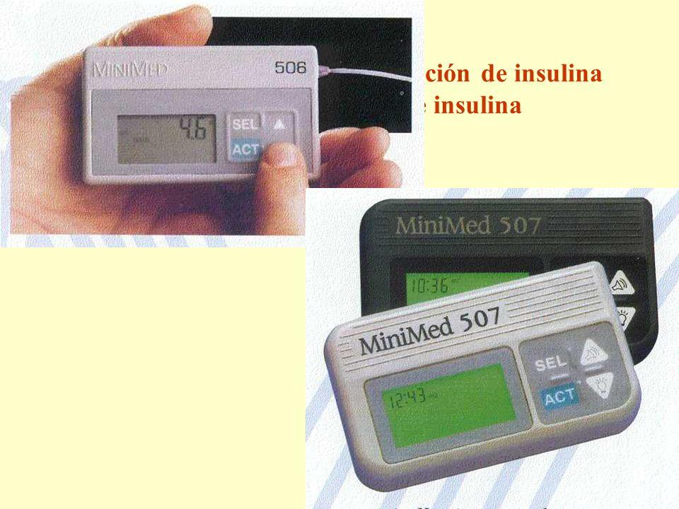 Dispositivos para la administración de insulina Bombas de perfusión de insulina