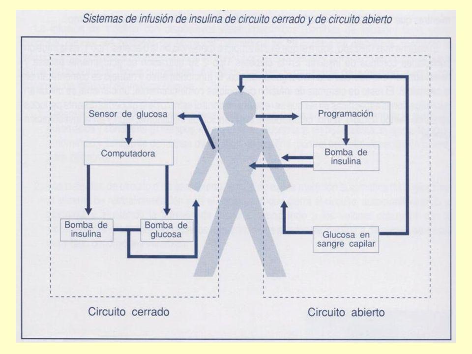 Sistemas de infusión de Insulina