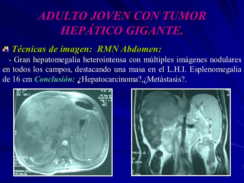 ADULTO JOVEN CON TUMOR HEPÁTICO GIGANTE. Técnicas de imagen: RMN Abdomen: - Gran hepatomegalia heterointensa con múltiples imágenes nodulares en todos