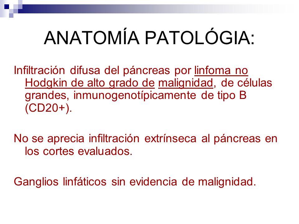 ANATOMÍA PATOLÓGIA: Infiltración difusa del páncreas por linfoma no Hodgkin de alto grado de malignidad, de células grandes, inmunogenotípicamente de