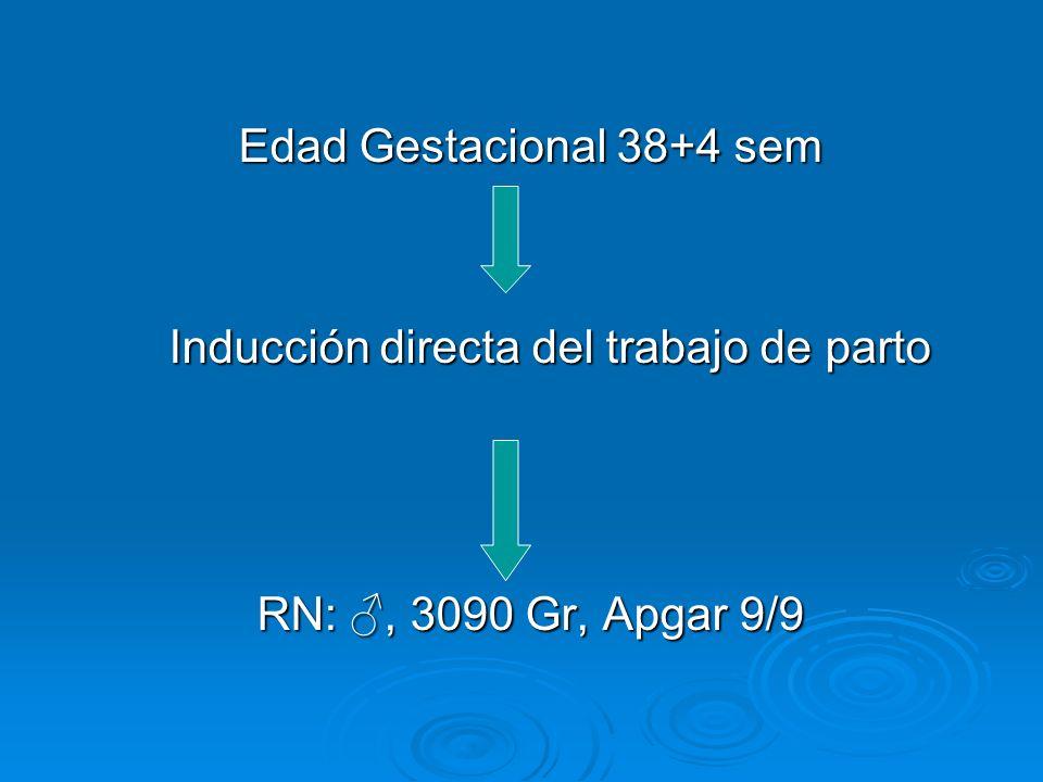 Edad Gestacional 38+4 sem Inducción directa del trabajo de parto RN:, 3090 Gr, Apgar 9/9