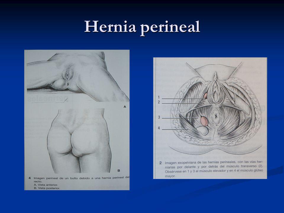 Caso clínico Tacto rectal: tumoración extrarrectal lisa.
