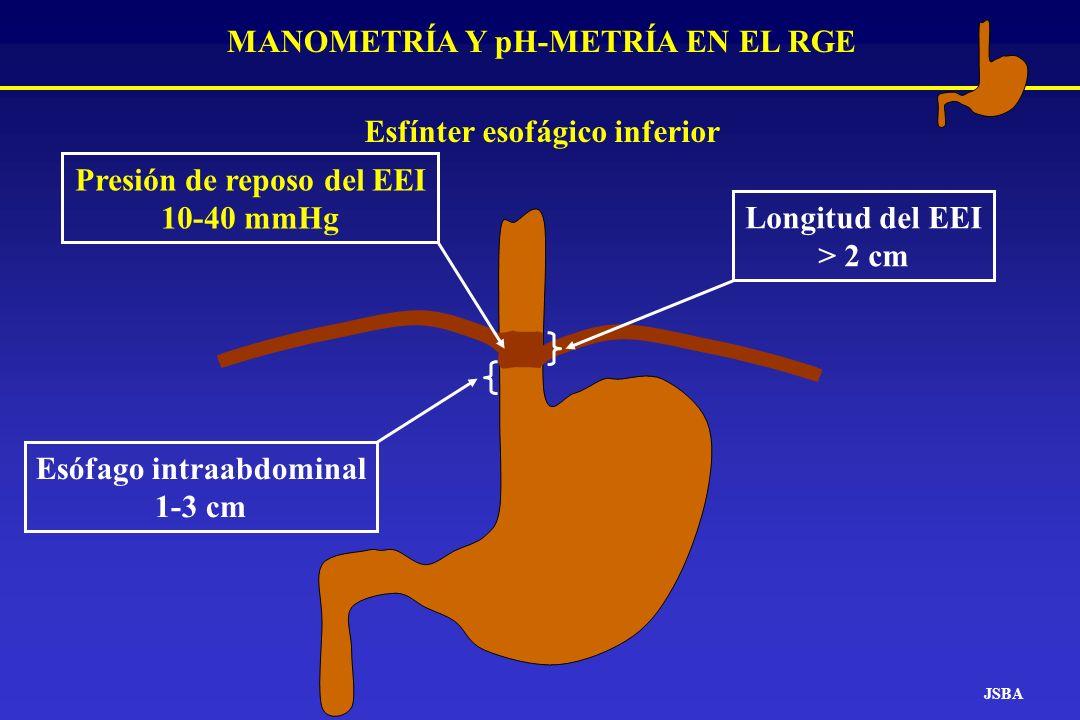 MANOMETRÍA Y pH-METRÍA EN EL RGE Esófago intraabdominal 1-3 cm Longitud del EEI > 2 cm Presión de reposo del EEI 10-40 mmHg JSBA Esfínter esofágico in