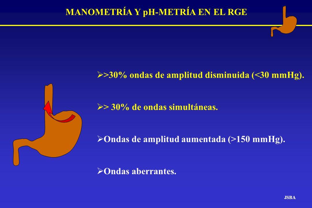 MANOMETRÍA Y pH-METRÍA EN EL RGE JSBA >30% ondas de amplitud disminuida (<30 mmHg). > 30% de ondas simultáneas. Ondas de amplitud aumentada (>150 mmHg