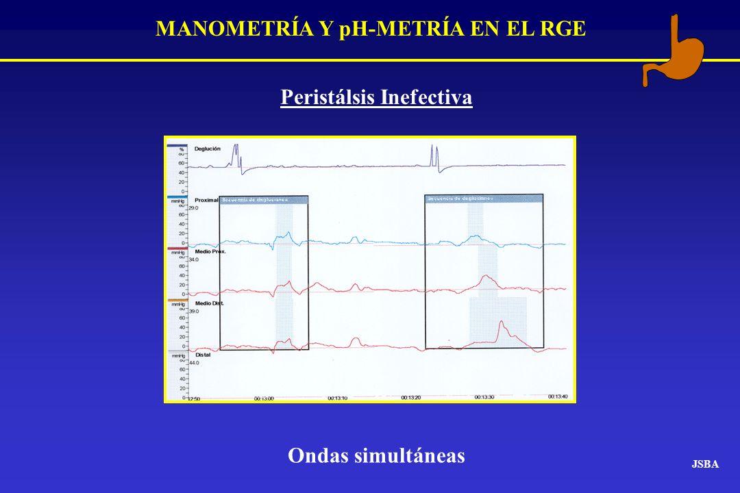 MANOMETRÍA Y pH-METRÍA EN EL RGE JSBA Peristálsis Inefectiva Ondas simultáneas
