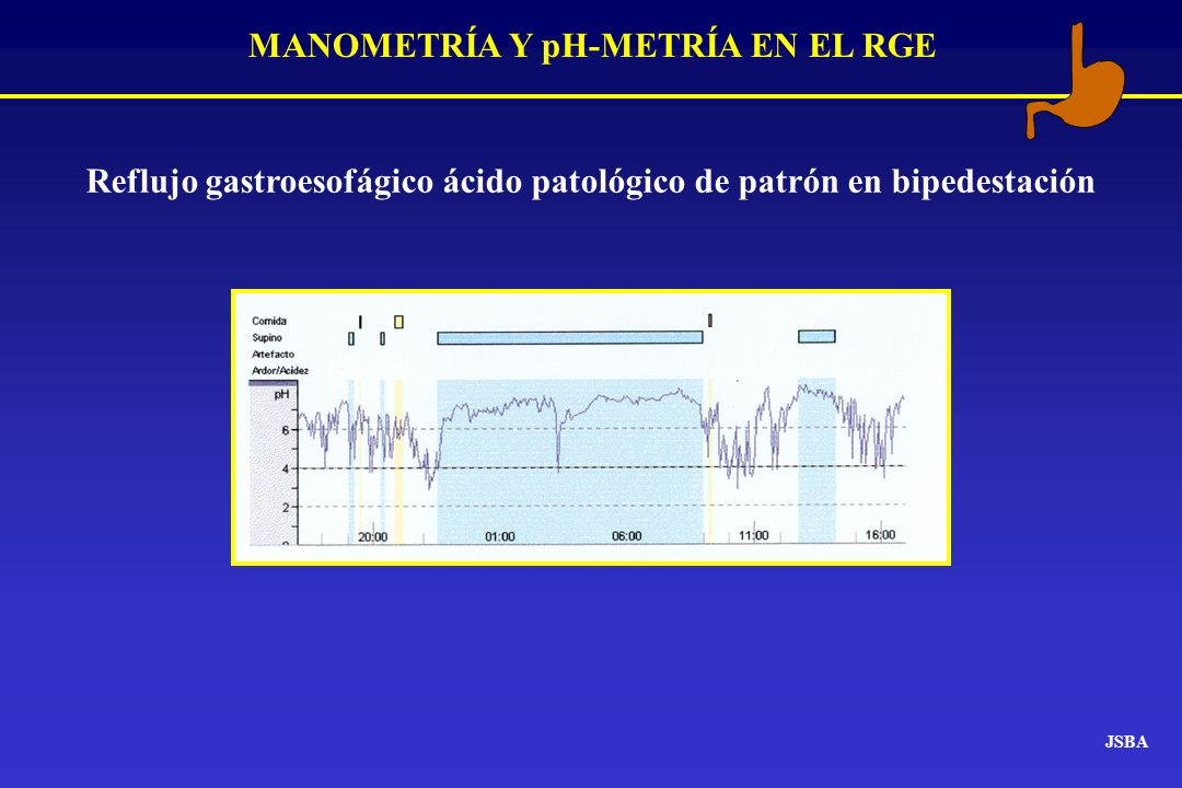 MANOMETRÍA Y pH-METRÍA EN EL RGE JSBA Reflujo gastroesofágico ácido patológico de patrón en bipedestación
