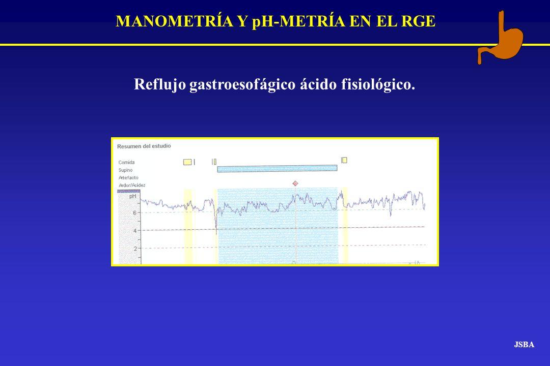 MANOMETRÍA Y pH-METRÍA EN EL RGE JSBA Reflujo gastroesofágico ácido fisiológico.