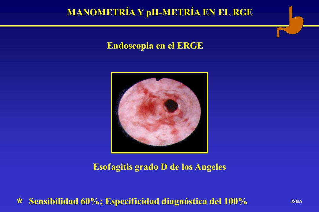 MANOMETRÍA Y pH-METRÍA EN EL RGE JSBA EsofagitisGrupo control sin RGE Presión del EEI 5 10 15 20 25 30 35 mmHg P<0.01