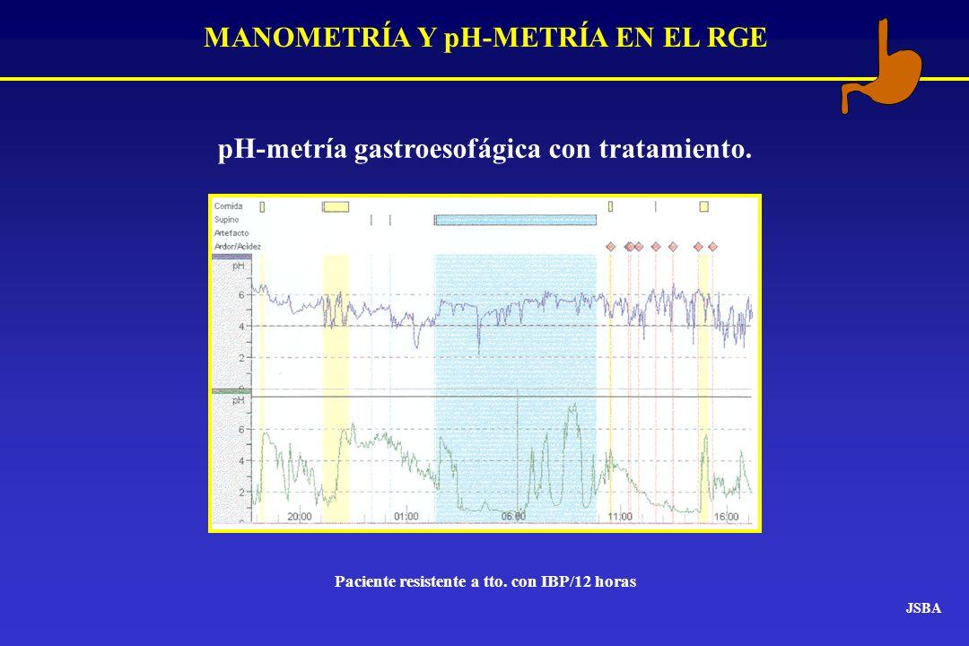 MANOMETRÍA Y pH-METRÍA EN EL RGE JSBA pH-metría gastroesofágica con tratamiento. Paciente resistente a tto. con IBP/12 horas