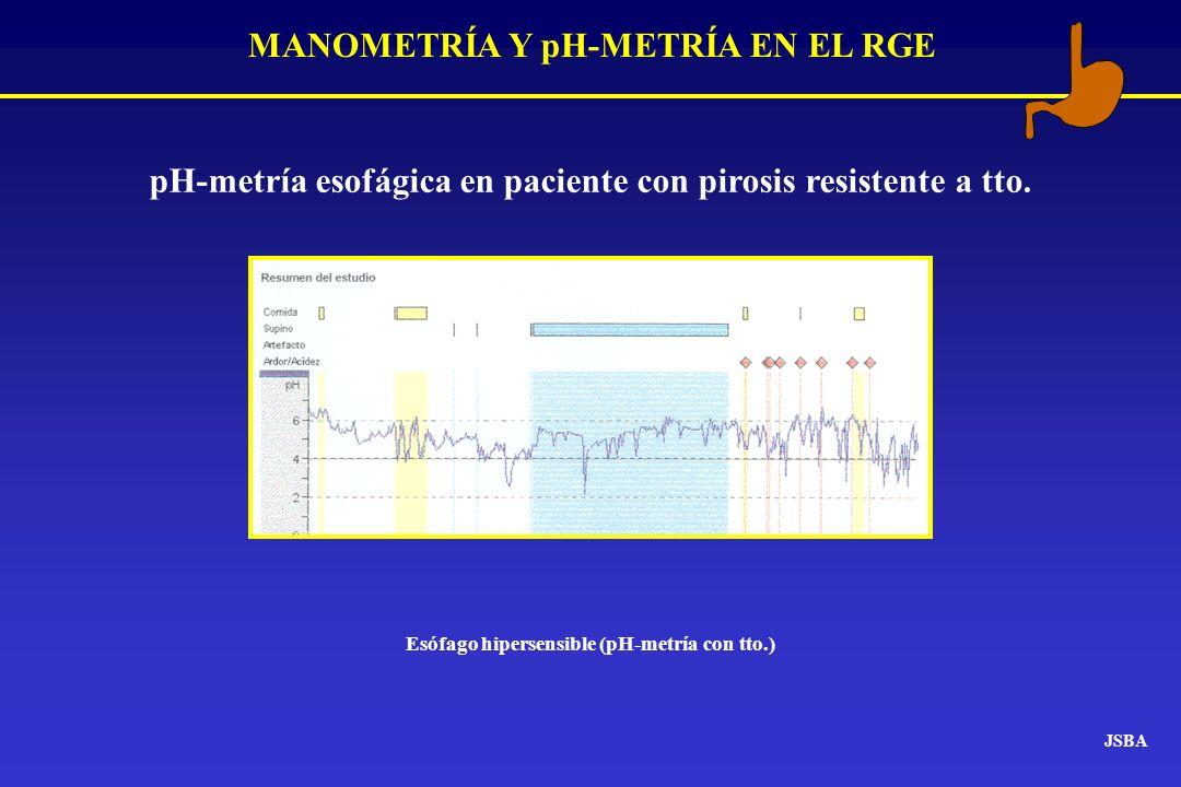 MANOMETRÍA Y pH-METRÍA EN EL RGE JSBA pH-metría esofágica en paciente con pirosis resistente a tto. Esófago hipersensible (pH-metría con tto.)